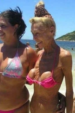 Image of old lady with boob job